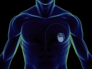 WeldComputer Application for Pacemakers
